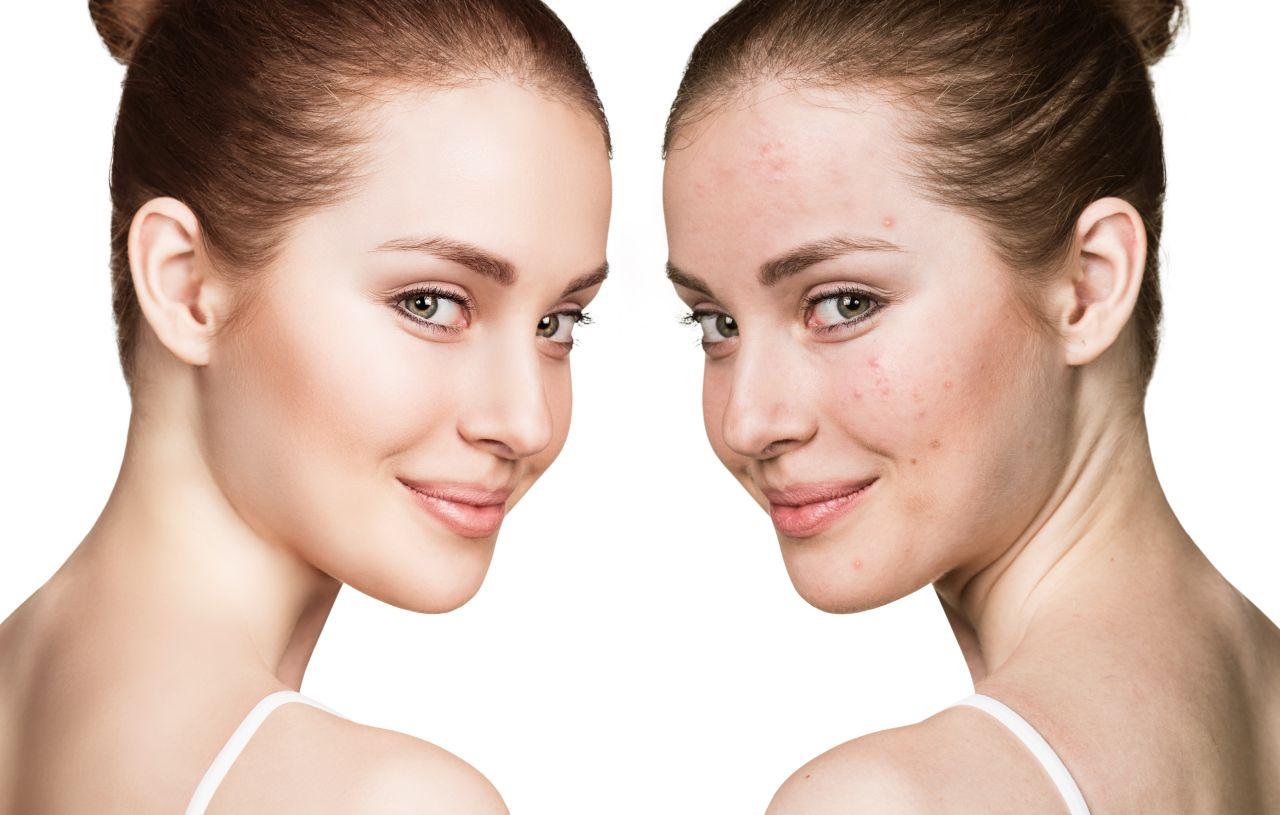 Zabiegi poprawiające stan skóry trądzikowej